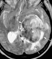 papilloma tumore plesso corioideo)